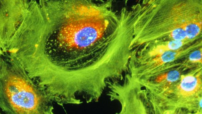 Immunotherapy cancer drug hailed as 'game changer'
