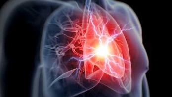 Anti-inflammatory drug 'cuts heart attack risk'