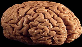 Brain donation urged by dementia research centre