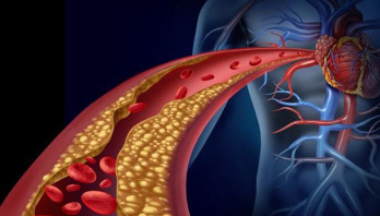 Cholesterol-lowering jab to help prevent heart disease