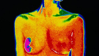 Breast cancer can return 15 years after treatment ends