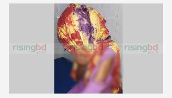 Schoolgirl stabbed in Pabna