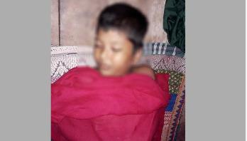 দৌলতপুরে সাপের কামড়ে স্কুল ছাত্রের মৃত্যু